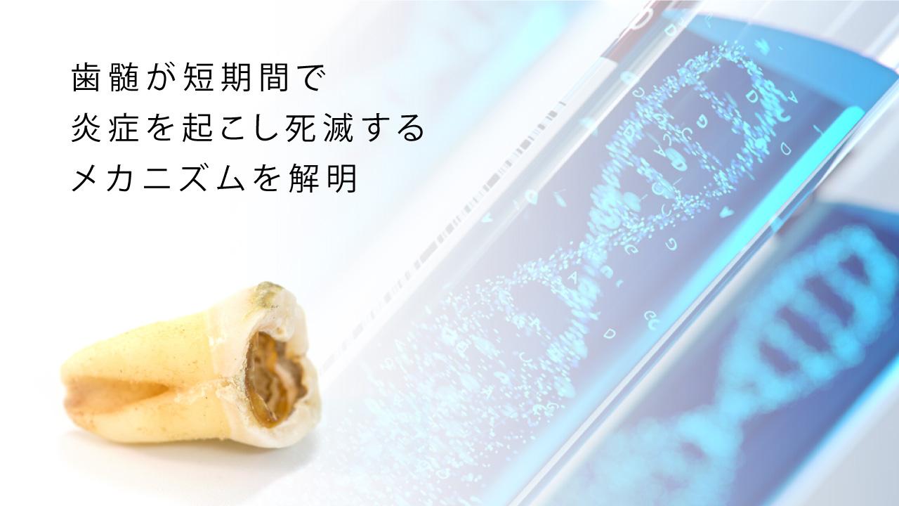 歯髄が短期間で炎症を起こし死滅するメカニズムを世界で初めて解明  九州大の画像です