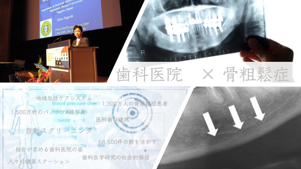 骨粗鬆症患者のスクリーニング・ステーションへ 〜社会から求められる歯科医院機能の拡大〜 前編の画像です