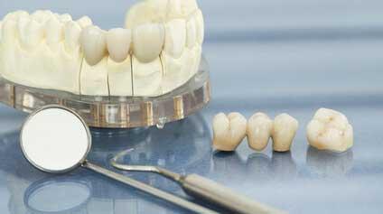 【歯科医師統計】自費クラウンの保証期間についての画像です