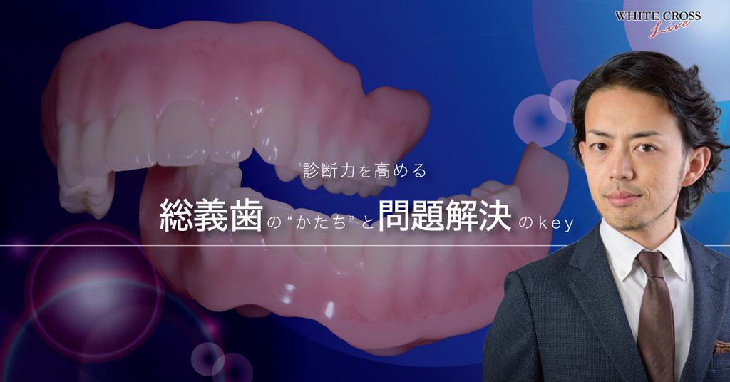 """診断力を高める!総義歯の""""かたち""""と問題解決のKey【ライブセミナー】の画像です"""