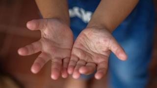 新たな手足口病の原因ウイルス「エンテロウイルスA71 C4亜型」を特定 金沢大らの画像です