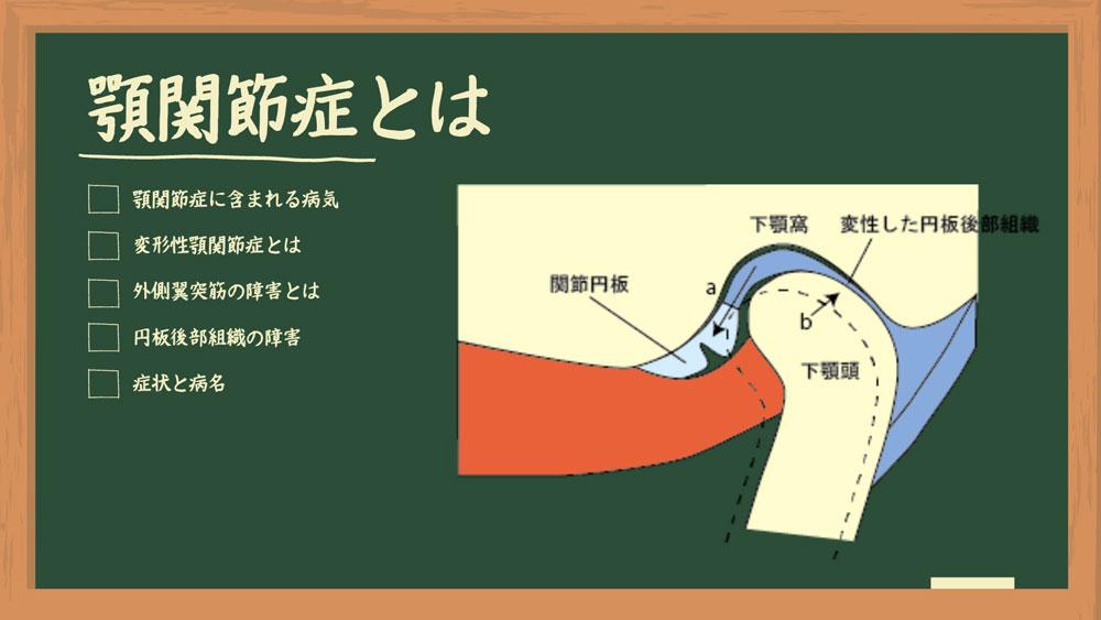 Dr.外川のやさしい補綴講義#3「顎関節症とは」の画像です