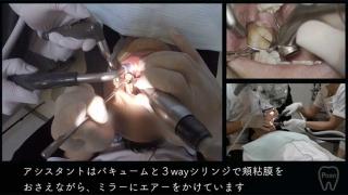 【顕微鏡歯科入門】ポジショニングとアシスタントワーク 第3回 左下臼歯部