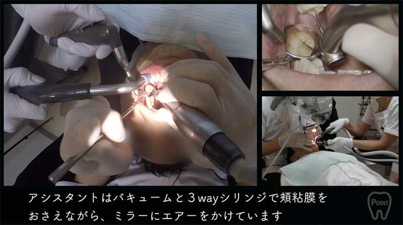【顕微鏡歯科入門】ポジショニングとアシスタントワーク 第3回 左下臼歯部の画像です