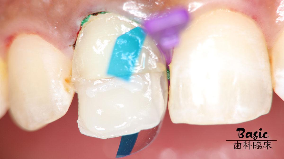 効率と確実性を両立させるコンポジットレジン修復 その2【前歯部修復編】の画像です