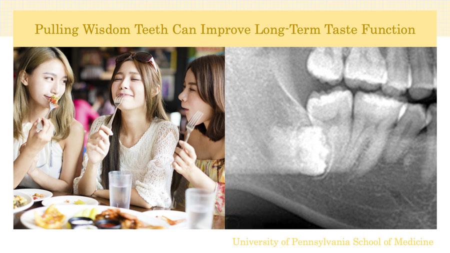 智歯の抜歯後、味覚感受性が高まる 米国の画像です