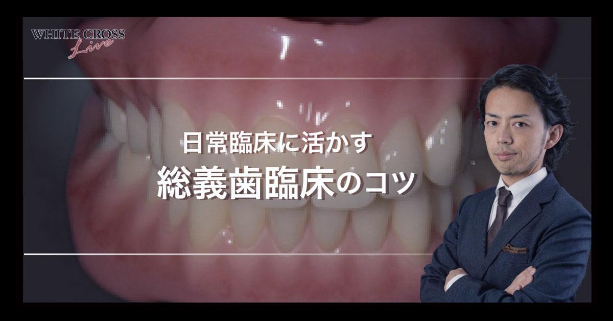 日常臨床に活かす総義歯臨床のコツ 〜WHITE CROSS Live 8月2日〜