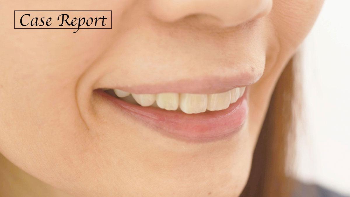 下顎左側偏位の顕在的病的咬合に対して、崩壊の原因を考え治療に取り組んだ症例の画像です