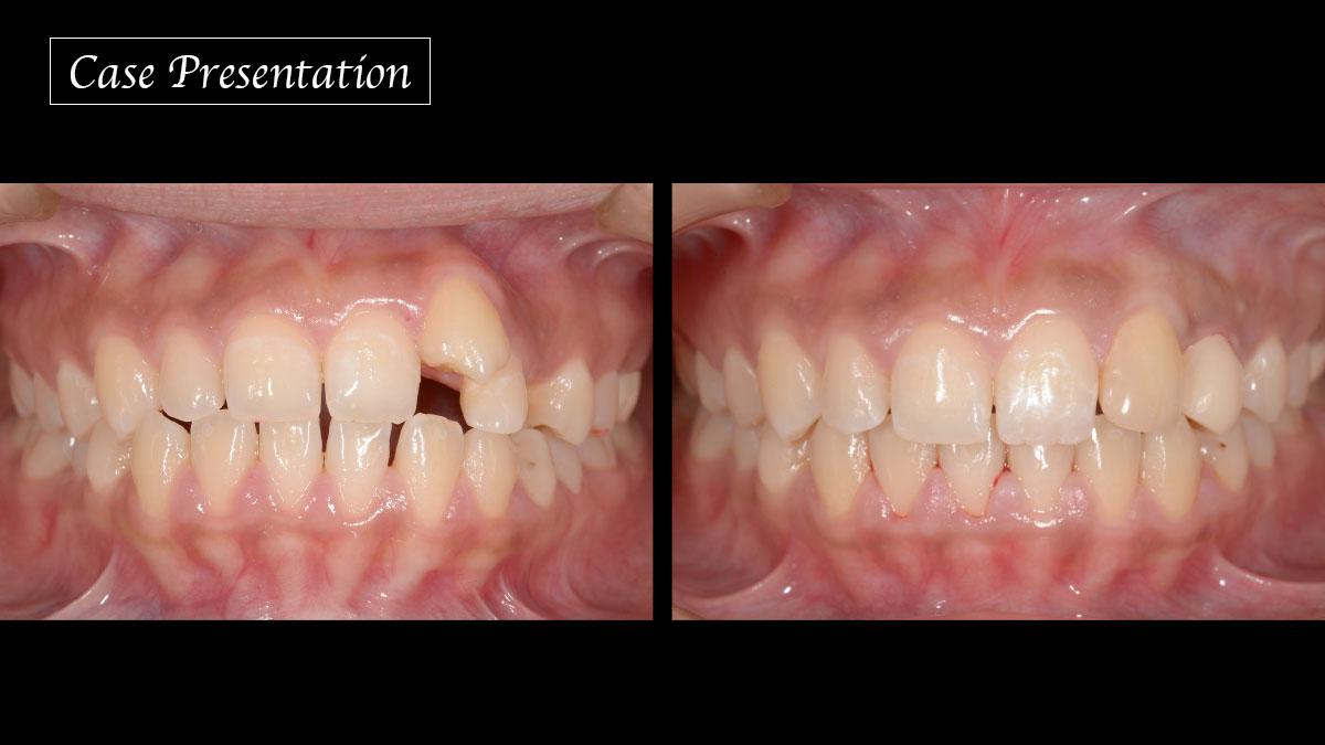 上顎側切歯・犬歯の位置異常による審美障害を改善した症例の画像です
