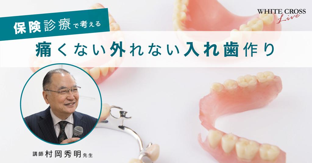 【LIVE】保険診療で考える痛くない外れない入れ歯作りの画像です