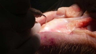 歯科用レーザー各論 第3回「Er:YAGレーザー」