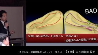 松丸 悠一先生『失敗しない総義歯臨床へのヒント』第5回 下顎 床外形線の設定