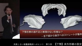 失敗しない総義歯臨床へのヒント 第5回『下顎床外形線の設定』
