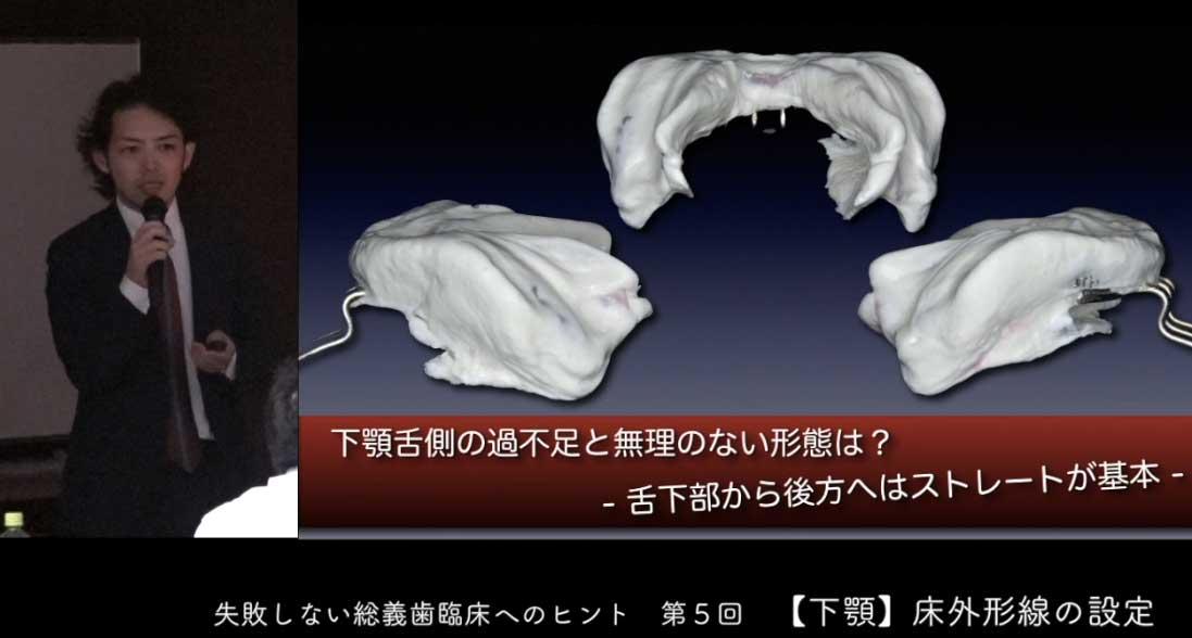 失敗しない総義歯臨床へのヒント 第5回『下顎床外形線の設定』の画像です