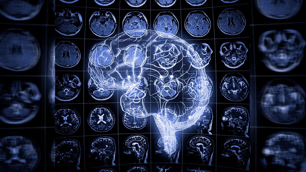 歯周病菌感染がアルツハイマー病関連成分を脳内輸入させることを発見 九州大の画像です