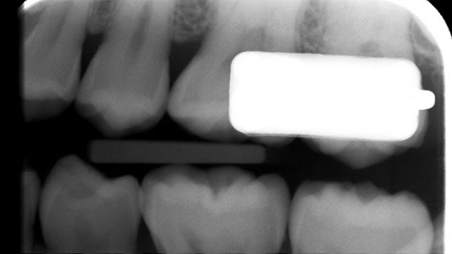 大臼歯部に装着する通話デバイスが米国国防総省から資本調達の画像です