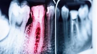 AVA Digital Awards 2018 米国歯内療法学会が金賞を受賞の画像です