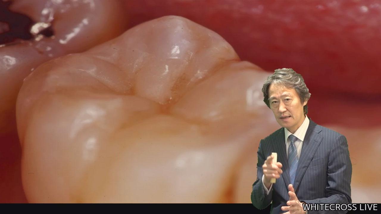 [8/31まで]宮崎真至先生『コンポジットレジン修復のサイエンス & テクニック』前編の画像です