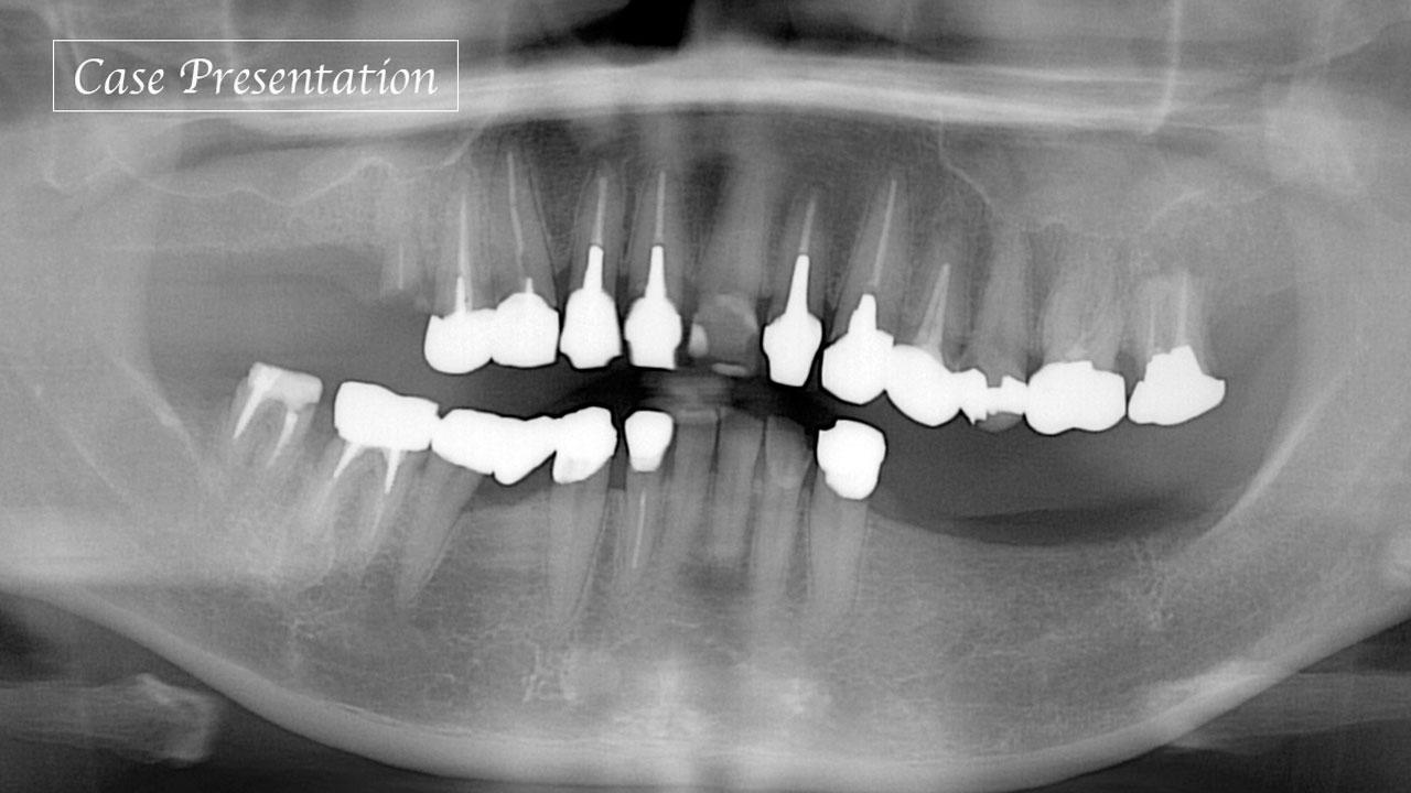 骨格的な歪みを伴う咬合崩壊症例における、咬合再構成の実際の画像です