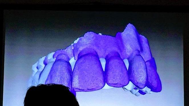 iSight特別講演会 「杉本真樹・デジタル歯科VR・AR・MR体験セミナー」