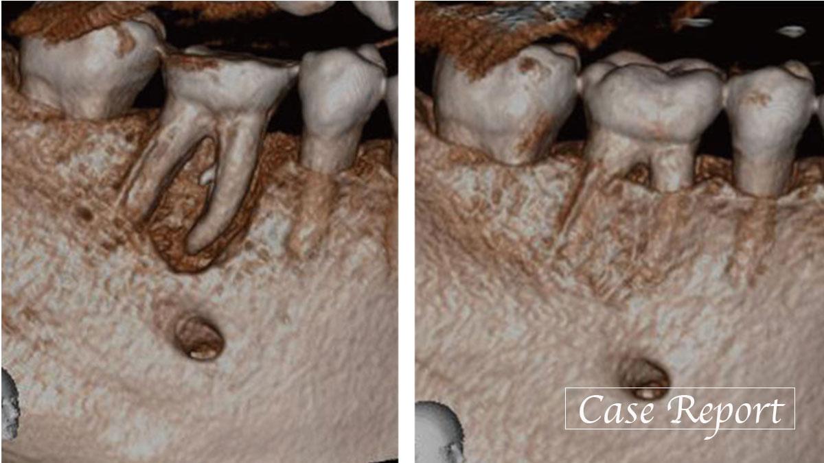 分岐部病変を有する根管穿孔歯に対し再根管治療により改善した症例の画像です
