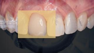 前歯部のCAD/CAM冠が保険適用に 中医協の画像です