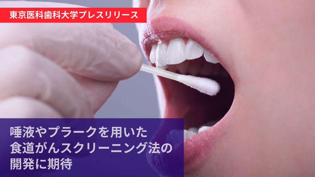 特定の口腔内細菌が食道がんのリスクファクターになることが明らかに 東京医科歯科大学の画像です
