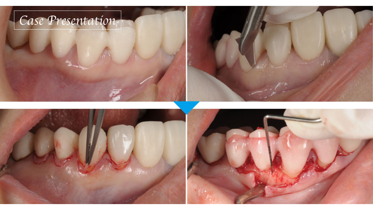 CANTを伴う審美障害に対し、歯周形成外科および補綴修復治療にて対応した症例の画像です