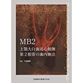 MB2 上顎大臼歯近心頬側第2根管の歯内療法の画像です