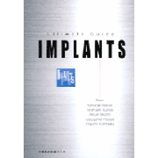 Ultimate Guide IMPLANTSの画像です