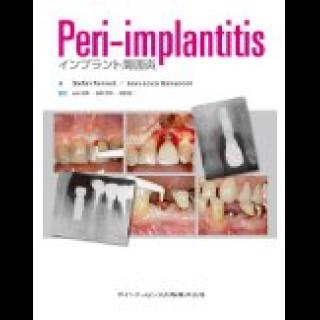Peri-implantitis インプラント周囲炎の画像です