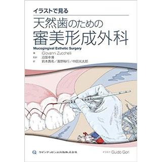 イラストで見る 天然歯のための審美形成外科の画像です