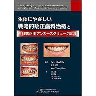 生体にやさしい戦略的矯正歯科治療と歯科矯正用アンカースクリューの応用の画像です