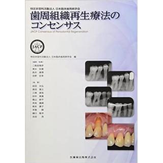 歯周組織再生療法のコンセンサスの画像です