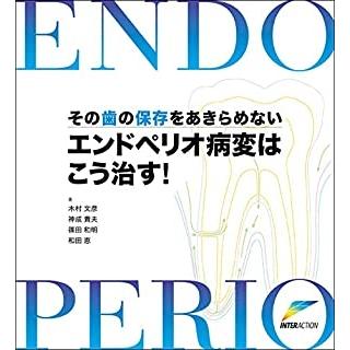 エンドペリオ病変はこう治す!―その歯の保存をあきらめない! の画像です