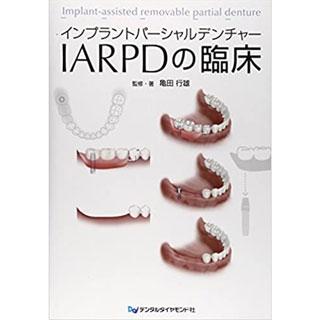 インプラントパーシャルデンチャー IARPDの臨床の画像です