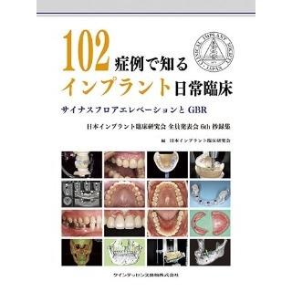 102症例で知るインプラント日常臨床の画像です
