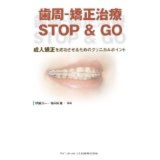 歯周-矯正治療 STOP & GOの画像です