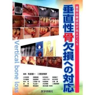 垂直性骨欠損への対応 歯周治療成功が見えてくるの画像です