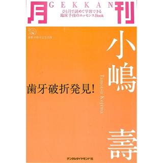 月刊小嶋寿 歯牙破折発見! (ひと月で読めて学習できる臨床手技のエッセンスBook)の画像です