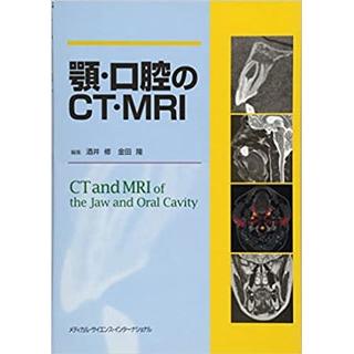 顎・口腔のCT・MRIの画像です
