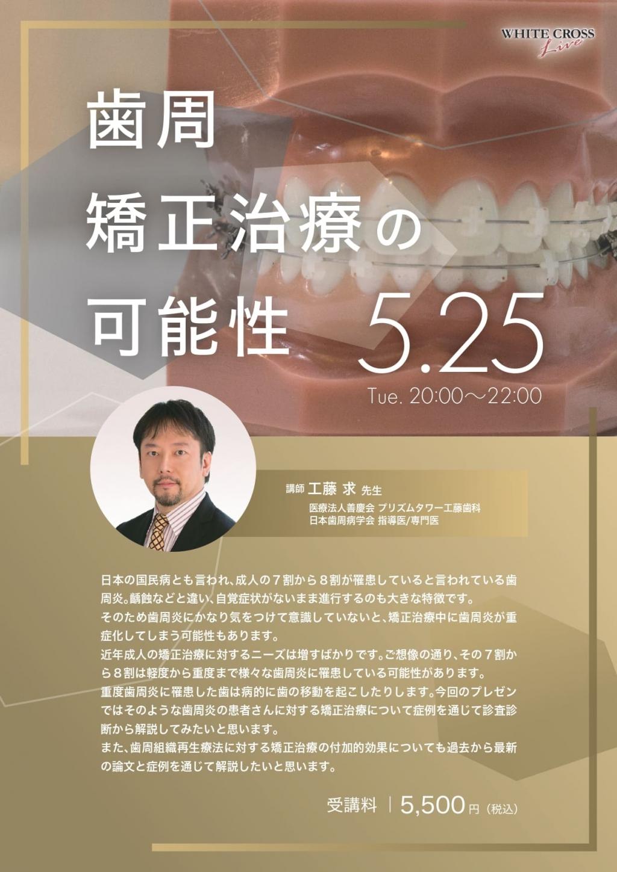 [Live]歯周矯正治療の可能性の画像です