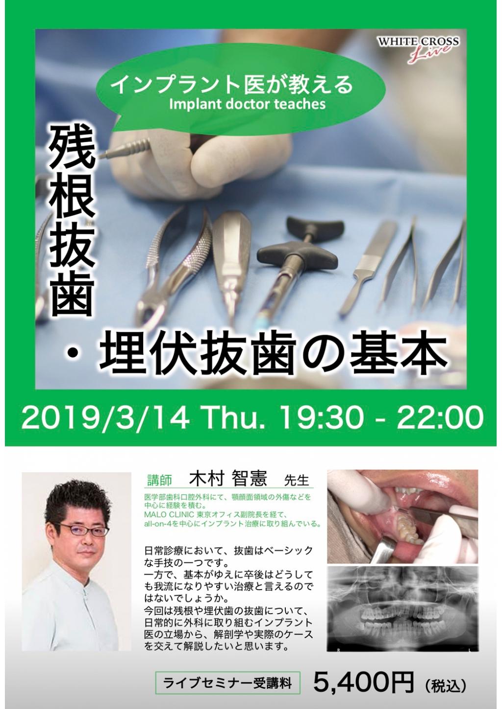 [録画配信]インプラント医が教える残根抜歯・埋伏抜歯の基本