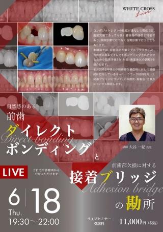 [Live]自然感のある前歯ダイレクトボンディングと、前歯部欠損に対する接着ブリッジの勘所の画像です