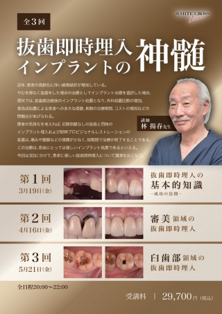 [Live]抜歯即時埋入インプラントの神髄の画像です