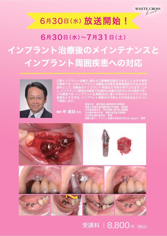 [Web]インプラント治療後のメインテナンスとインプラント周囲疾患への対応の画像です