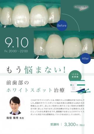 [Live]前歯部のホワイトスポット治療の画像です