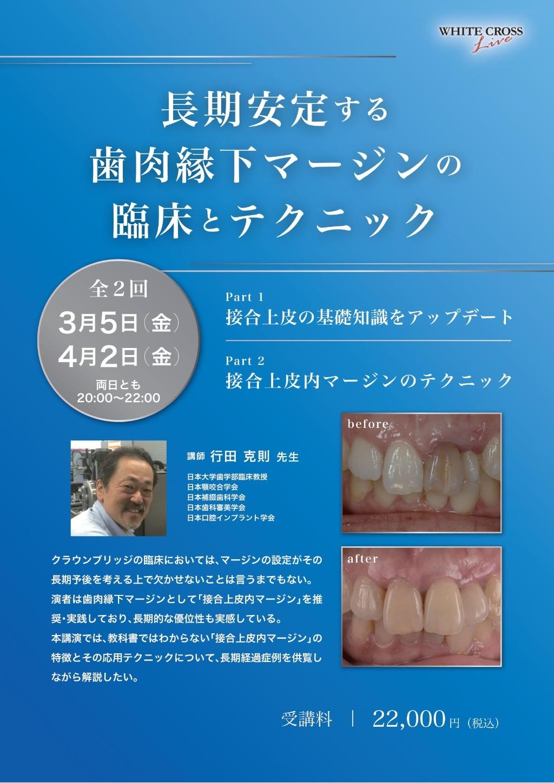 [Live]長期安定する歯肉縁下マージンの臨床とテクニックの画像です