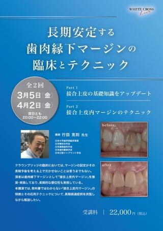 [録画配信]長期安定する歯肉縁下マージンの臨床とテクニックの画像です