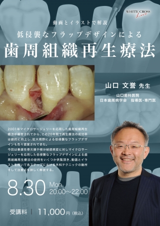 [Live]低侵襲なフラップデザインによる 歯周組織再生療法の画像です